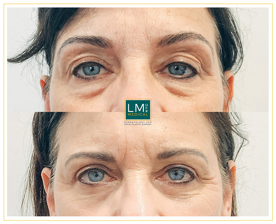 Female patient before and after upper and lower blepharoplasty - front