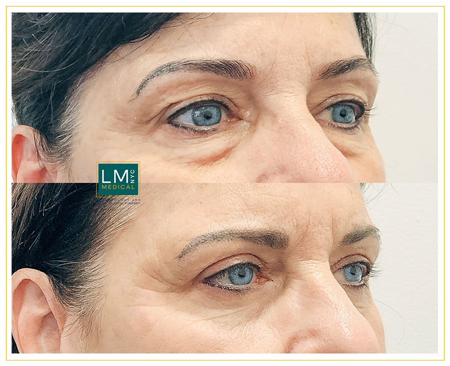 Female patient before and after upper and lower blepharoplasty - right side