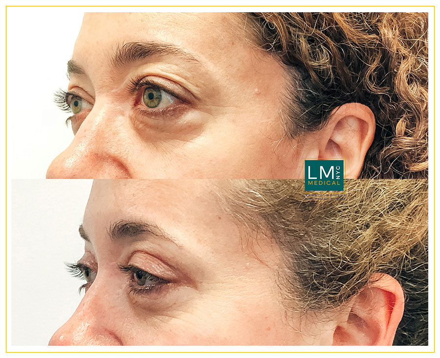 Female patient before and after upper and lower blepharoplasty - left side