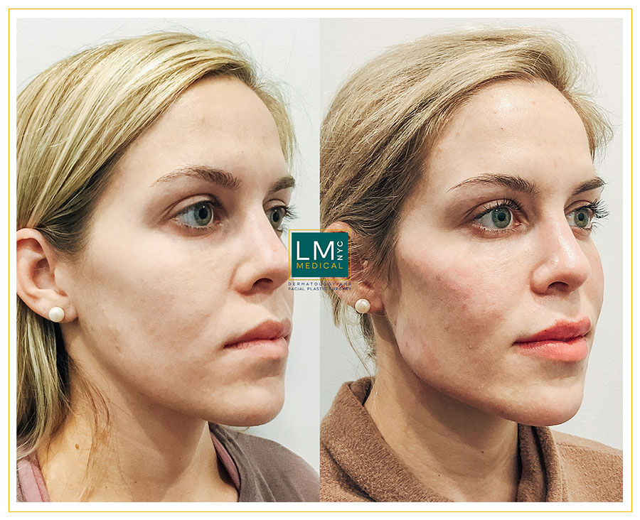 Female patient before and after temple, cheek, jawline and chin optimization with fillers