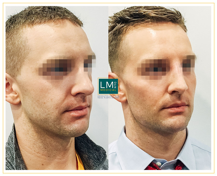 Male patient before and after cheek, jawline and chin optimization with fillers