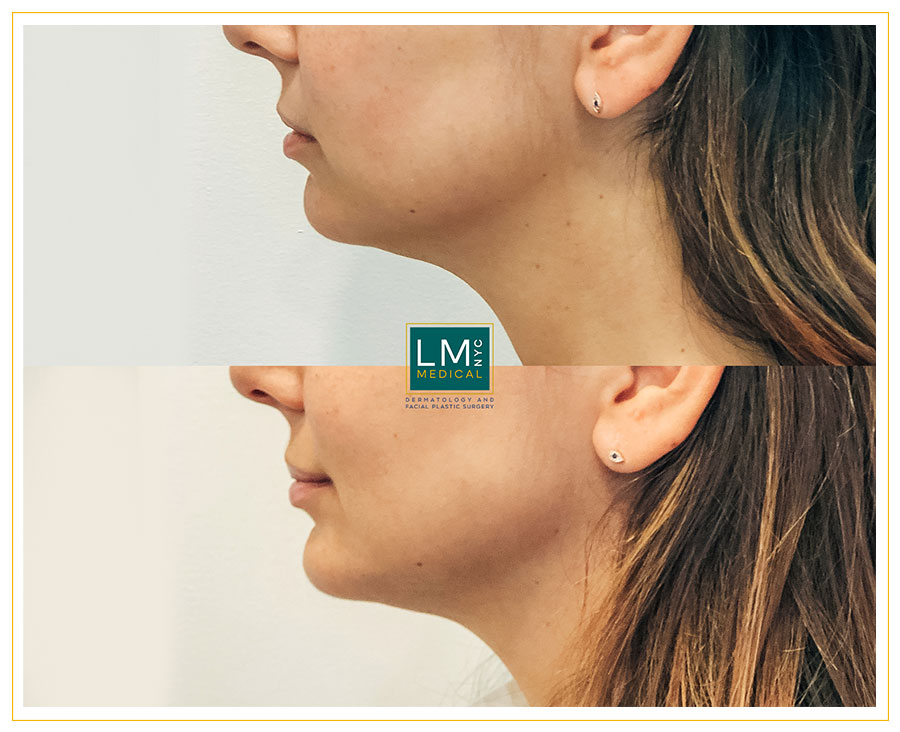Female patient before and after jawline, chin and lip optimization with fillers
