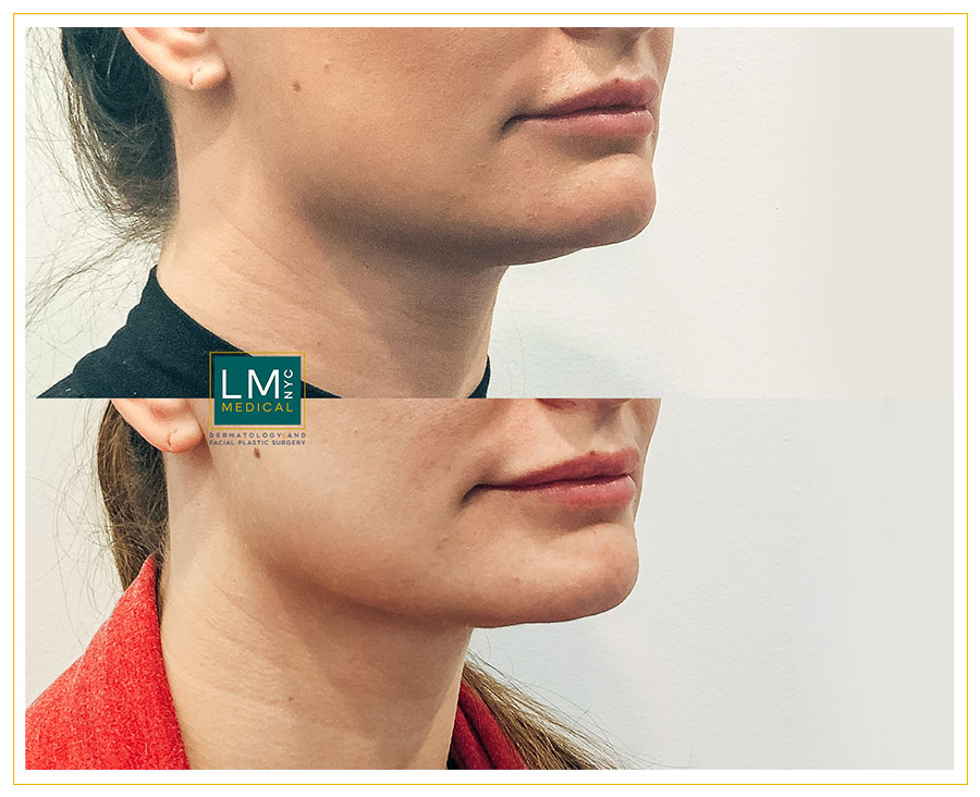 Female patient before and after submental and jawline contouring with micro-liposuction