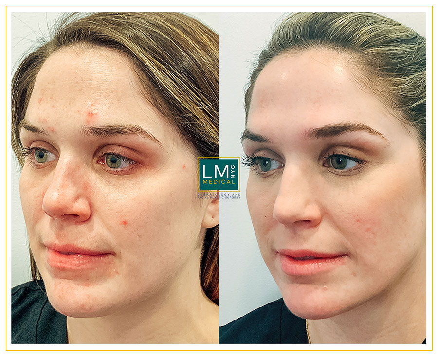 Female patient before and after acne treatment