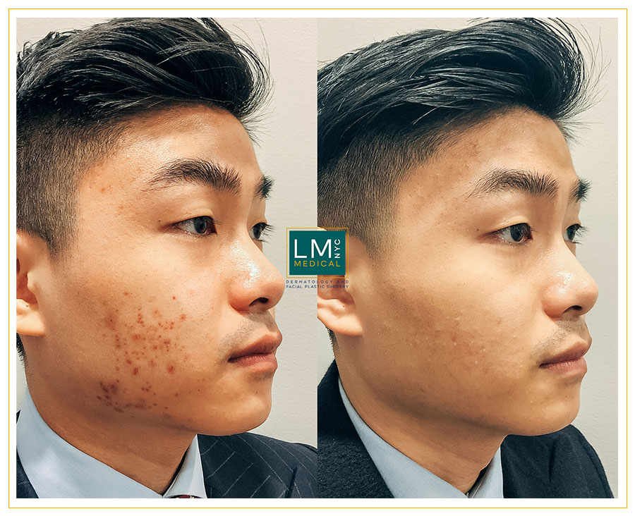 Male patient before and after acne treatment