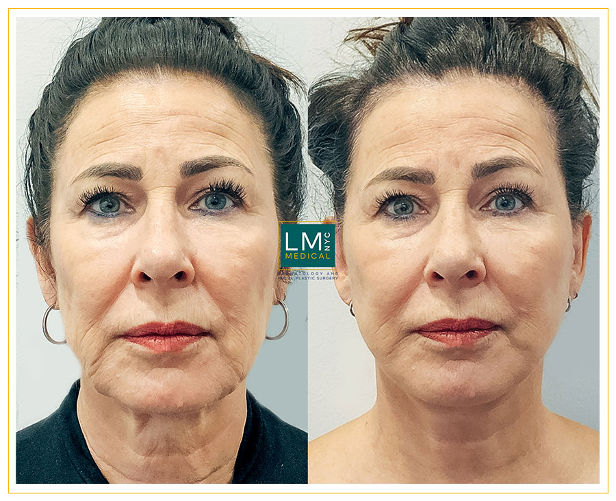 Female patient before and after deep plane facelift and neck lift-front