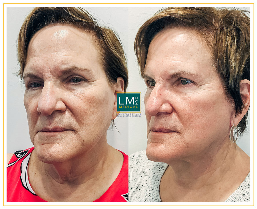 Female patient before and after deep plane face and neck lift
