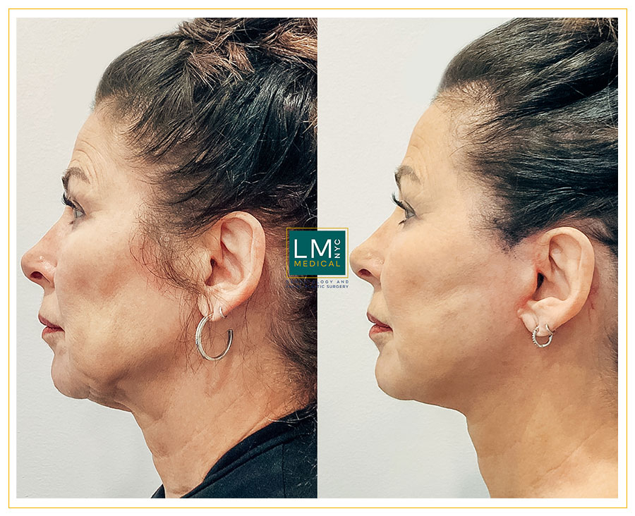 Female patient before and after deep plane facelift and neck lift-left side