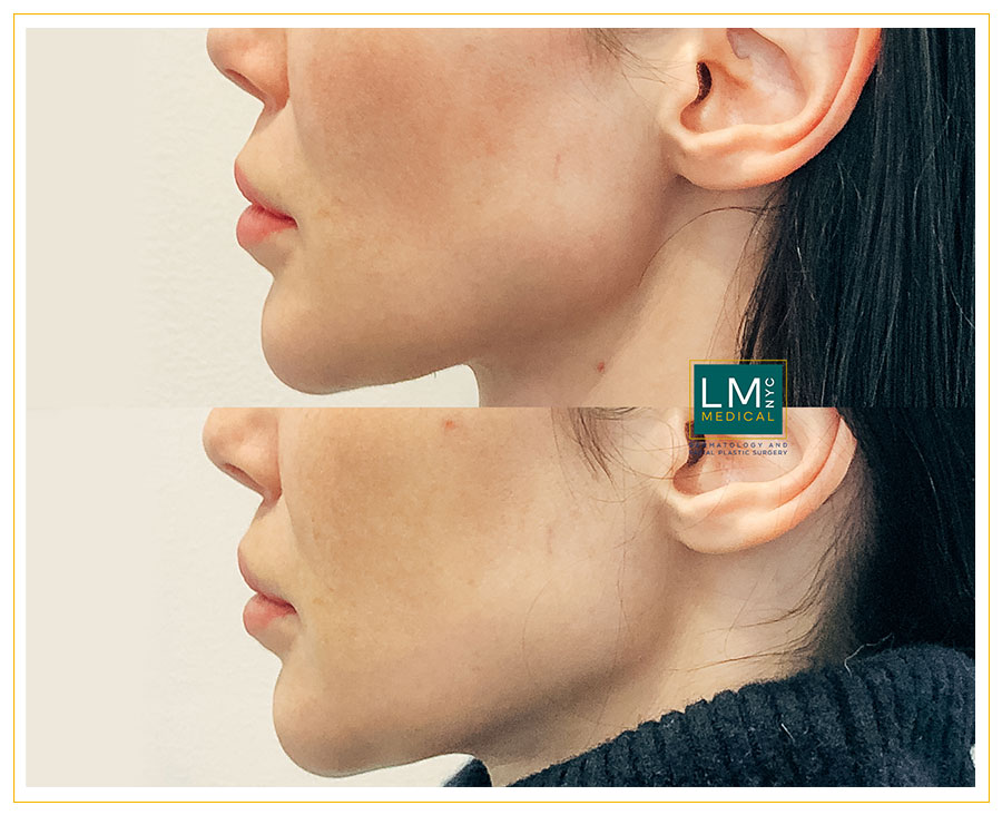 Female patient before and after modified upper lip lift