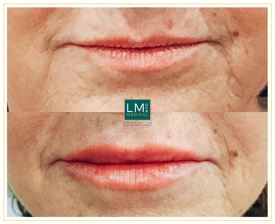 Female patient before and after lip enhancement various amounts of hyaluronic acid fillers