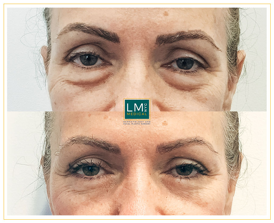 Female patient before and after Lower subciliary blepharoplasty - front
