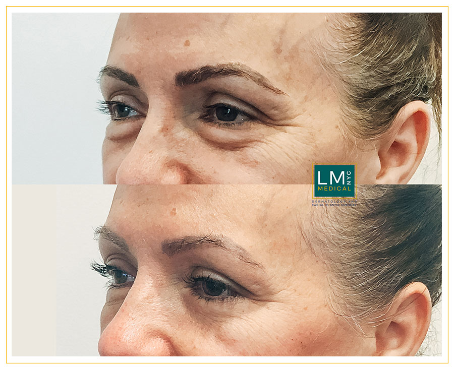 Female patient before and after Lower subciliary blepharoplasty - left side