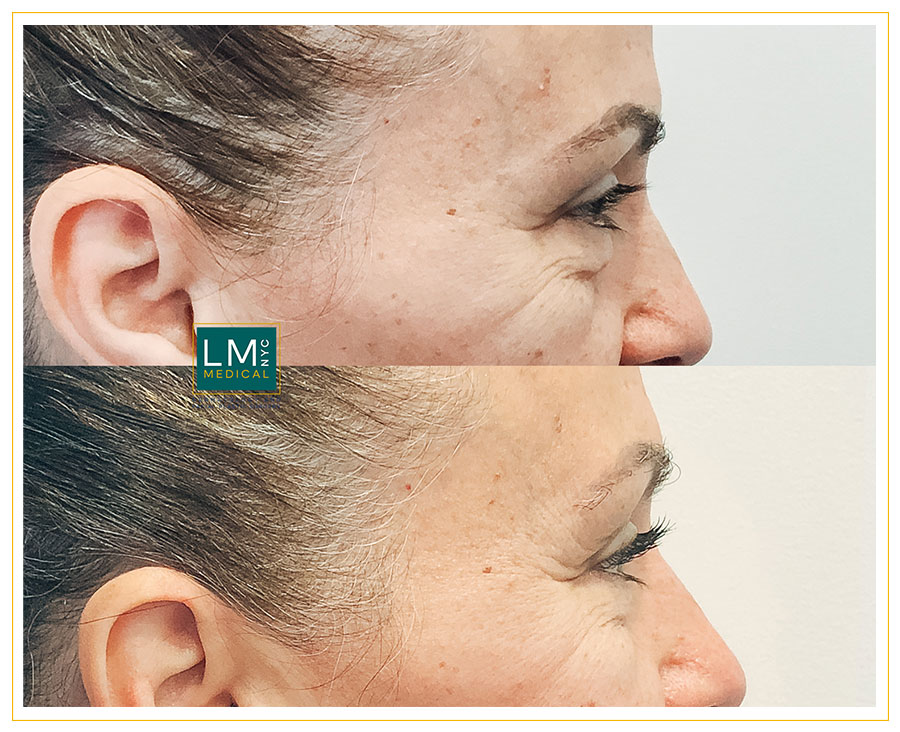 Female patient before and after Lower subciliary blepharoplasty - right side