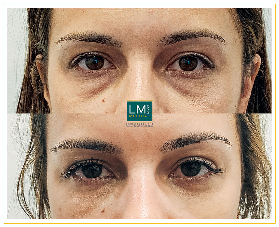 Female patient before and after Lower transconjunctival blepharoplasty - front