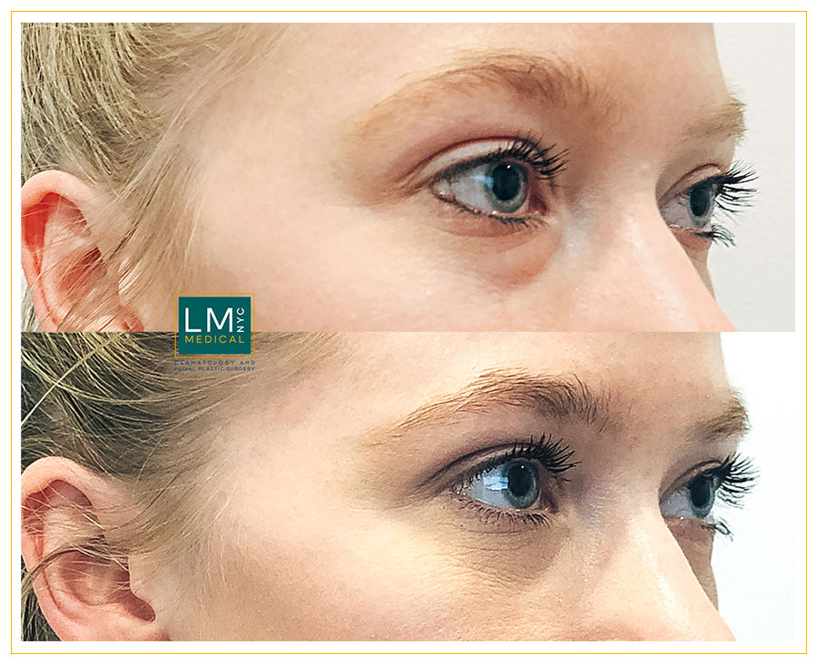 Female patient before and after Lower transconjunctival blepharoplasty - right side