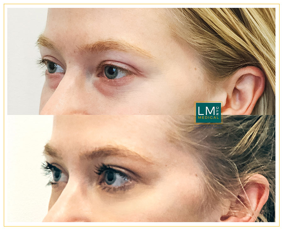 Female patient before and after Lower transconjunctival blepharoplasty - left side