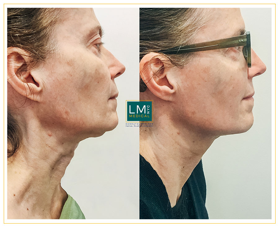 Female patient before and after deep plane face neck lift