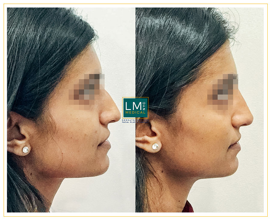 Female patient before and after non surgical rhinoplasty