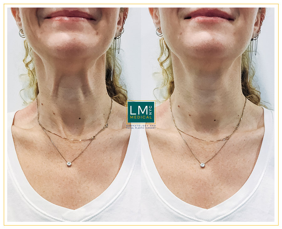 Female patient before and after botox treatment for neck banding