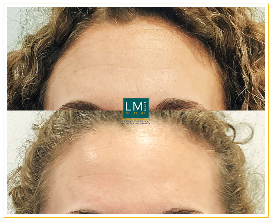 Female patient before and after botox Botox, Chemical Peels and Microneedling treatments
