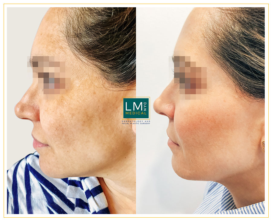 Female patient before and after melasma treatment