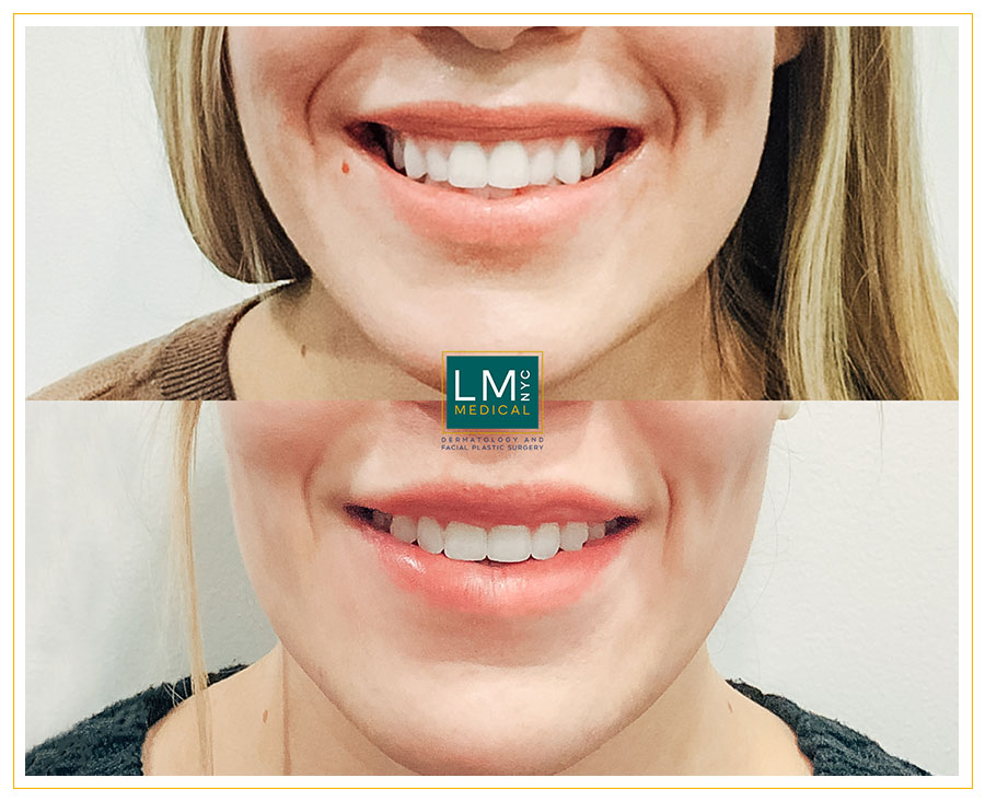 Female patient before and after botox treatment for gummy smile