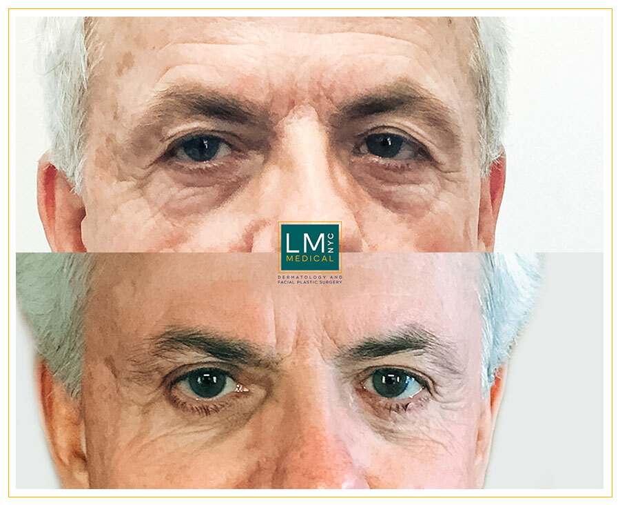Male patient before and after upper and lower blepharoplasty