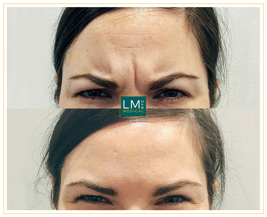 Female patient before and after Botox treatment for her glabella and forehead