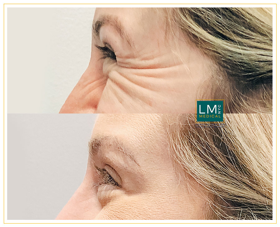 Female patient before and after botox treatment for her crows feet