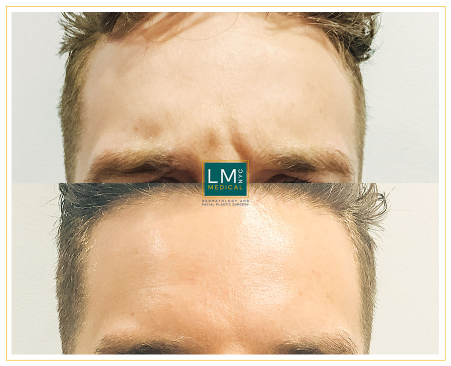 Male patient before and after botox treatment for his glabella