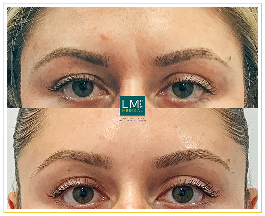Female patient before and after botox treatment for her glabella