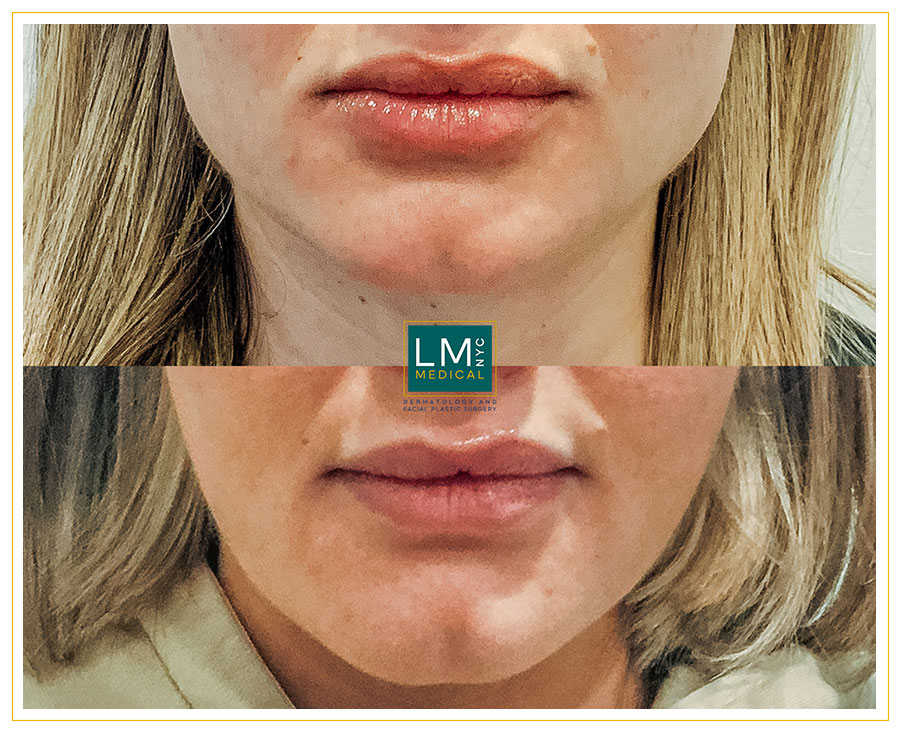 Female patient before and after botox treatment for jawline slimming