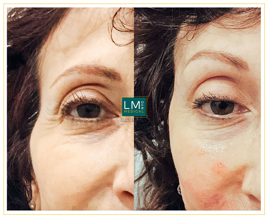 Female patient before and after filler enhancement for her temples