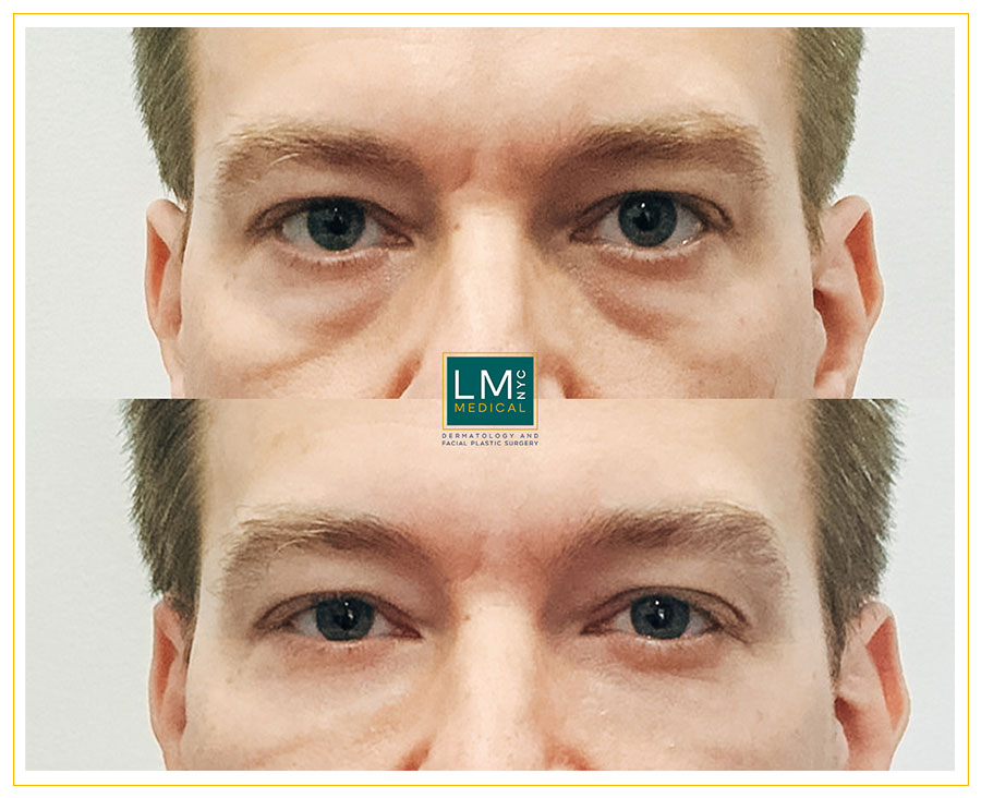 Male patient before and after under eye filler treatment