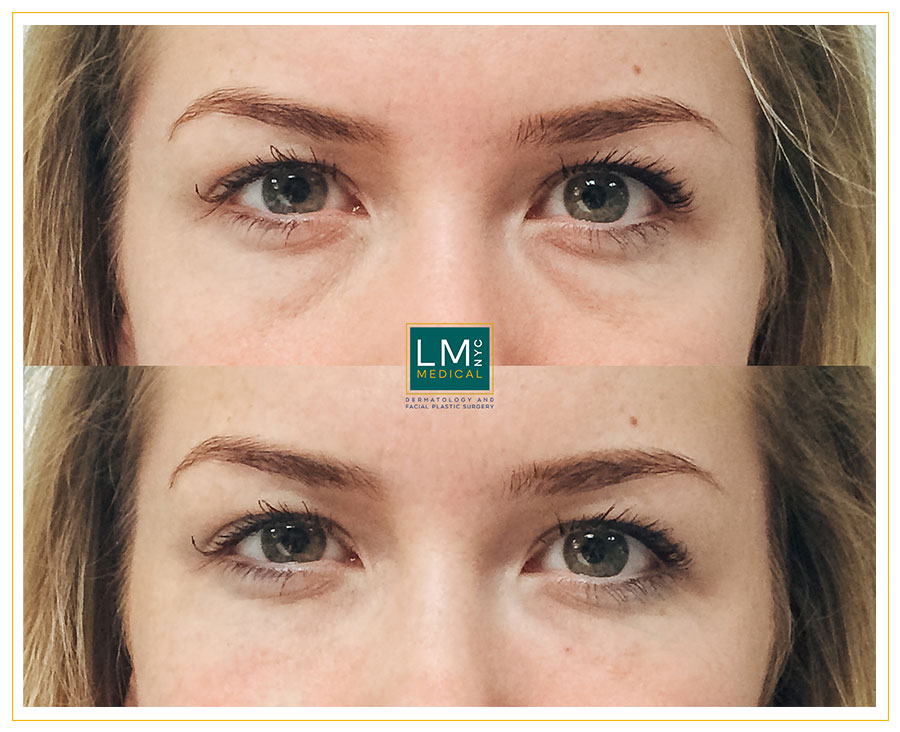 Female patient before and after under eye filler treatment