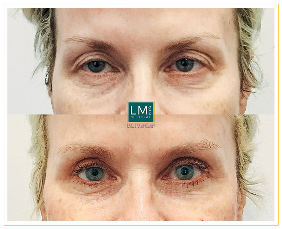 Female patient before and after upper blepharoplasty