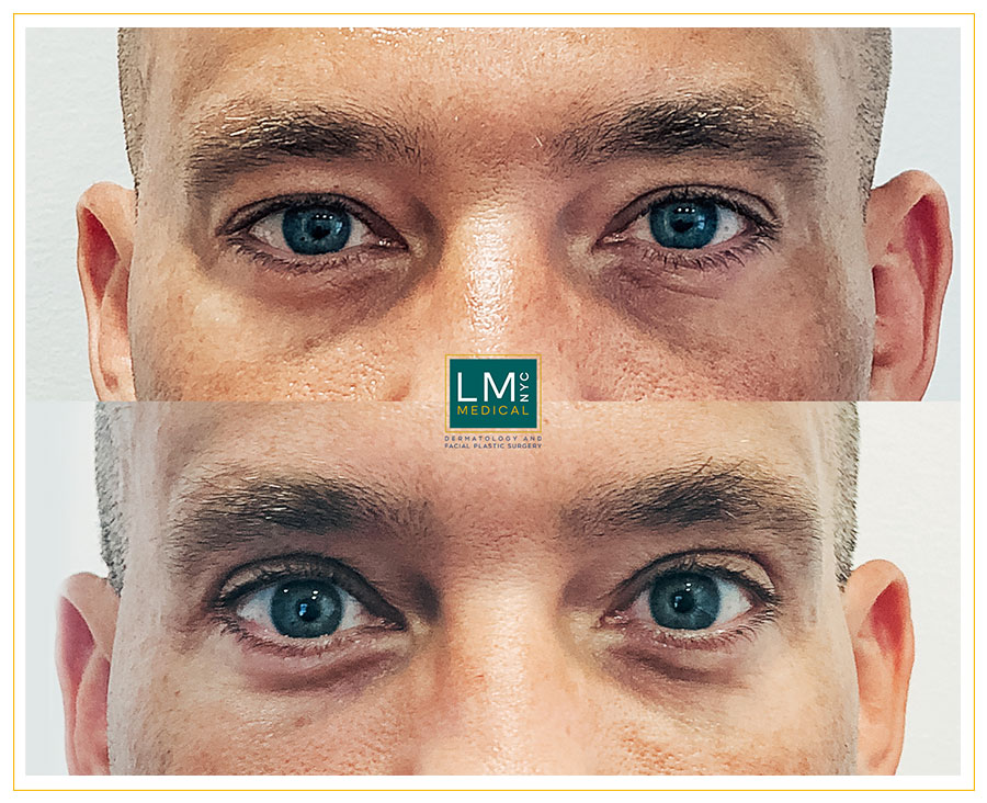 Male patient before and after upper blepharoplasty - front
