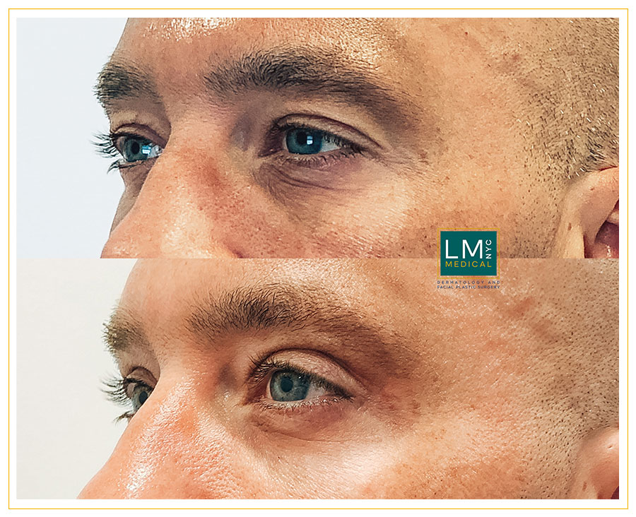 Male patient before and after upper blepharoplasty - left side