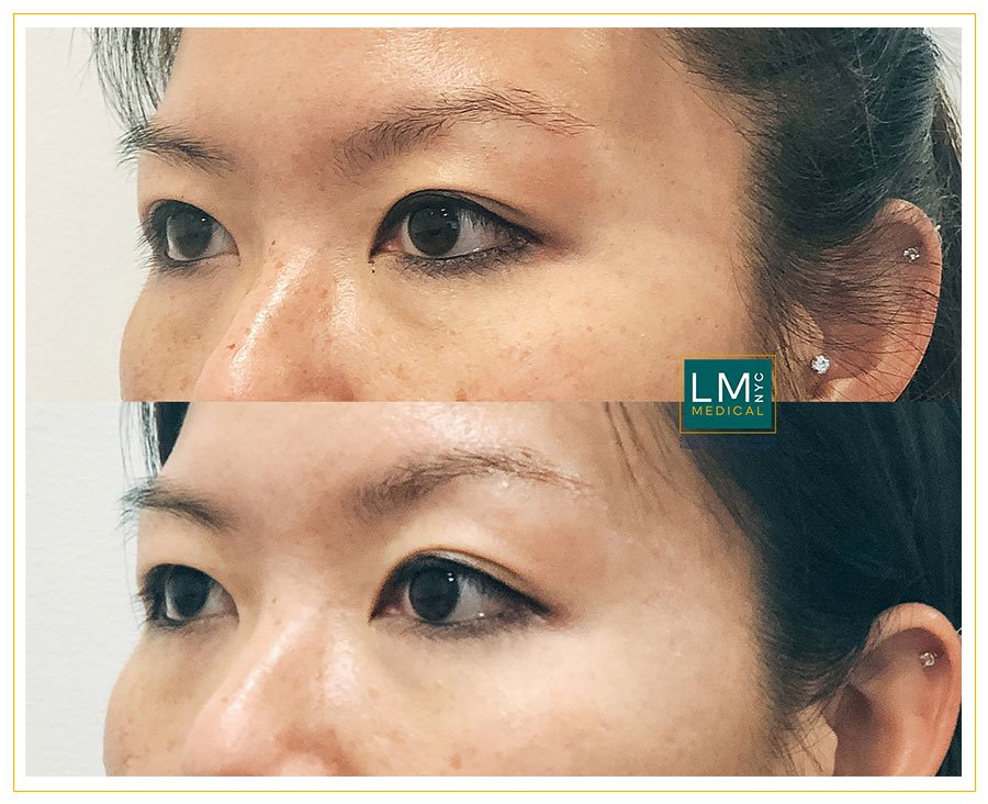 Female patient before and after Asian upper blepharoplasty - left side