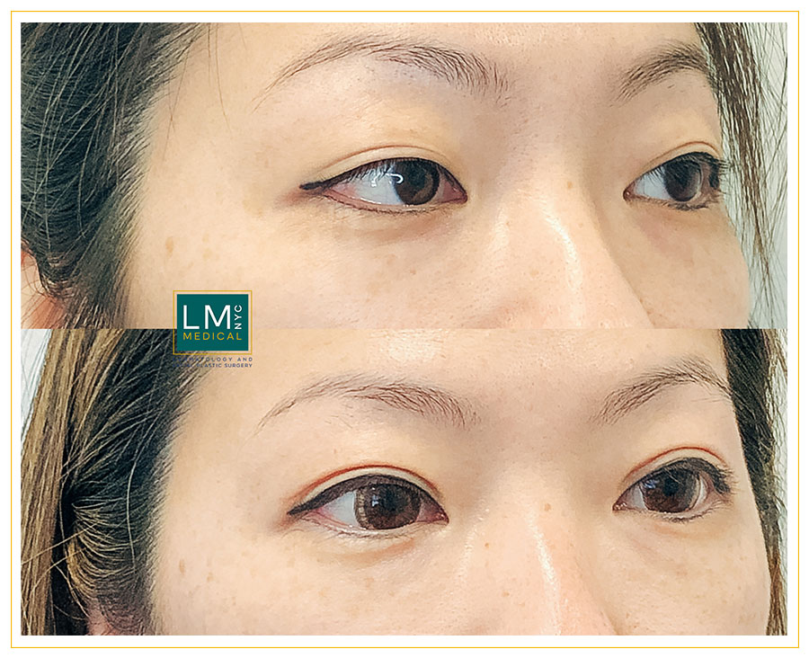 Female patient before and after Asian upper blepharoplasty - right side
