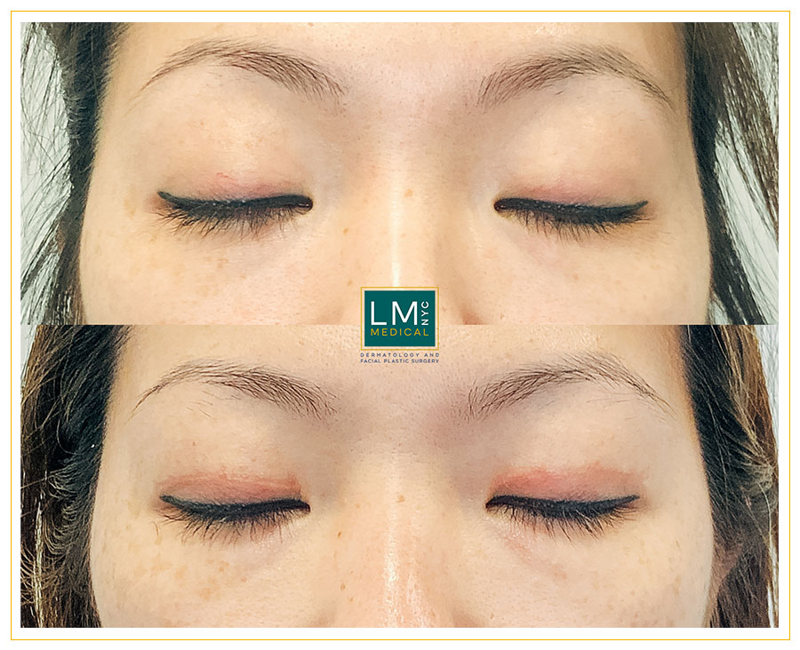 Female patient before and after Asian upper blepharoplasty - front