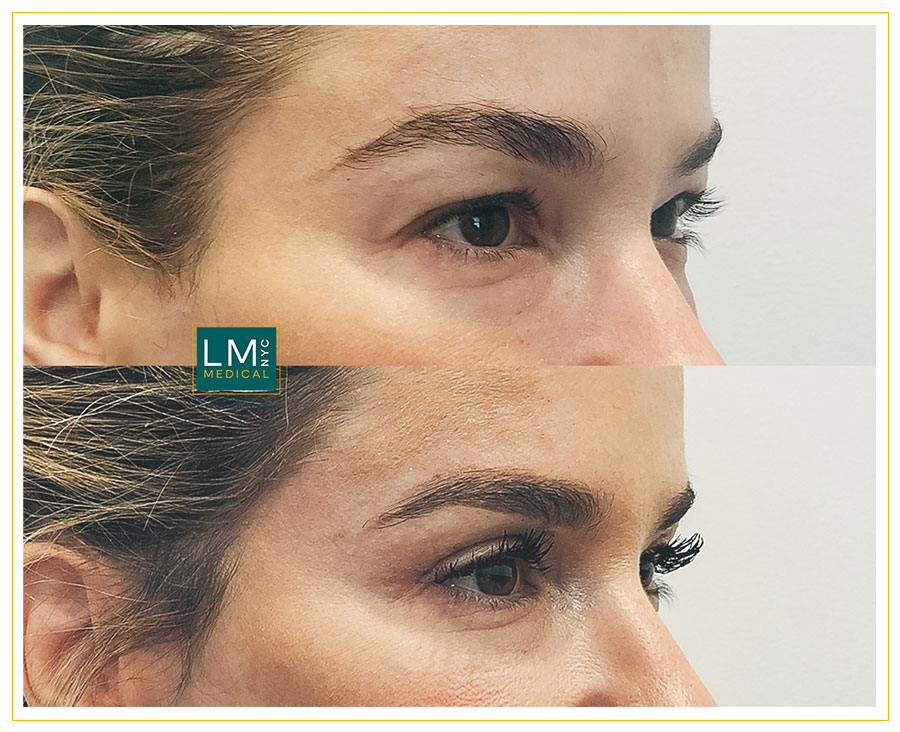 Female patient before and after upper blepharoplasty - right side