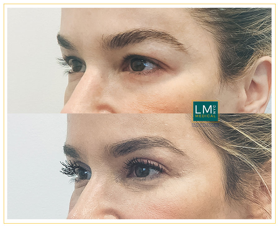 Female patient before and after upper blepharoplasty - left side