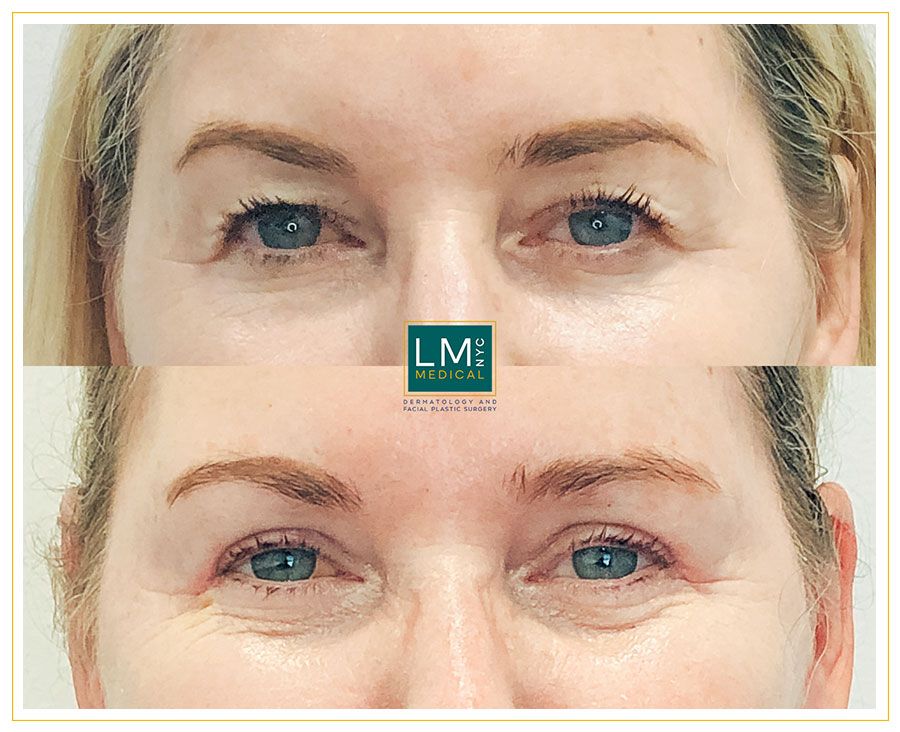 Female patient before and after upper blepharoplasty - front