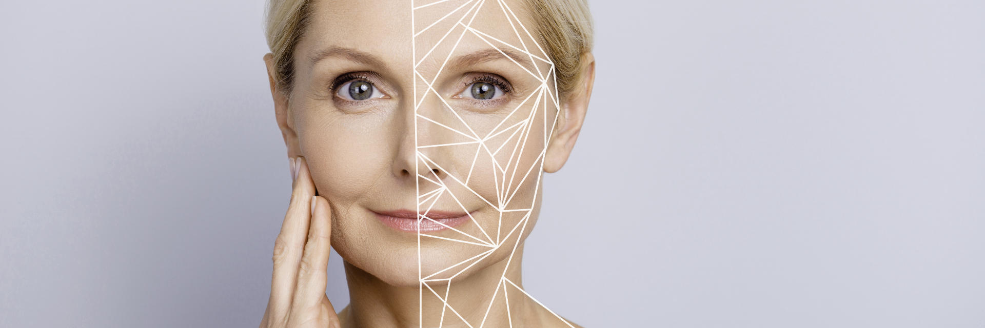 mature woman before and after facelift surgery
