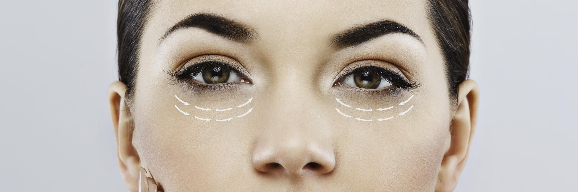 upper face of a woman with arrows showing skin tension lines under eyes