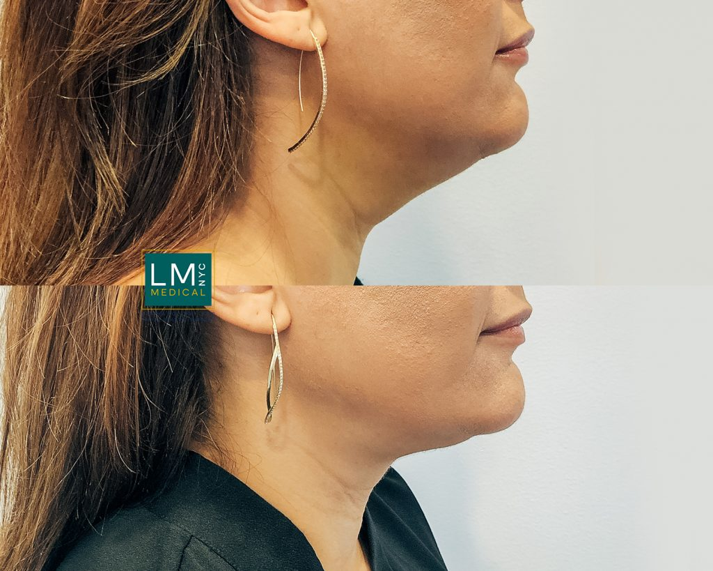 female patient before and after submental fat removal