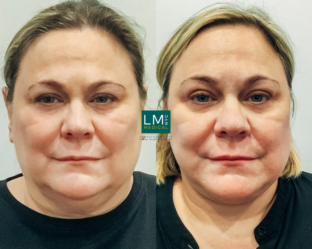 mature woman before and after facelift