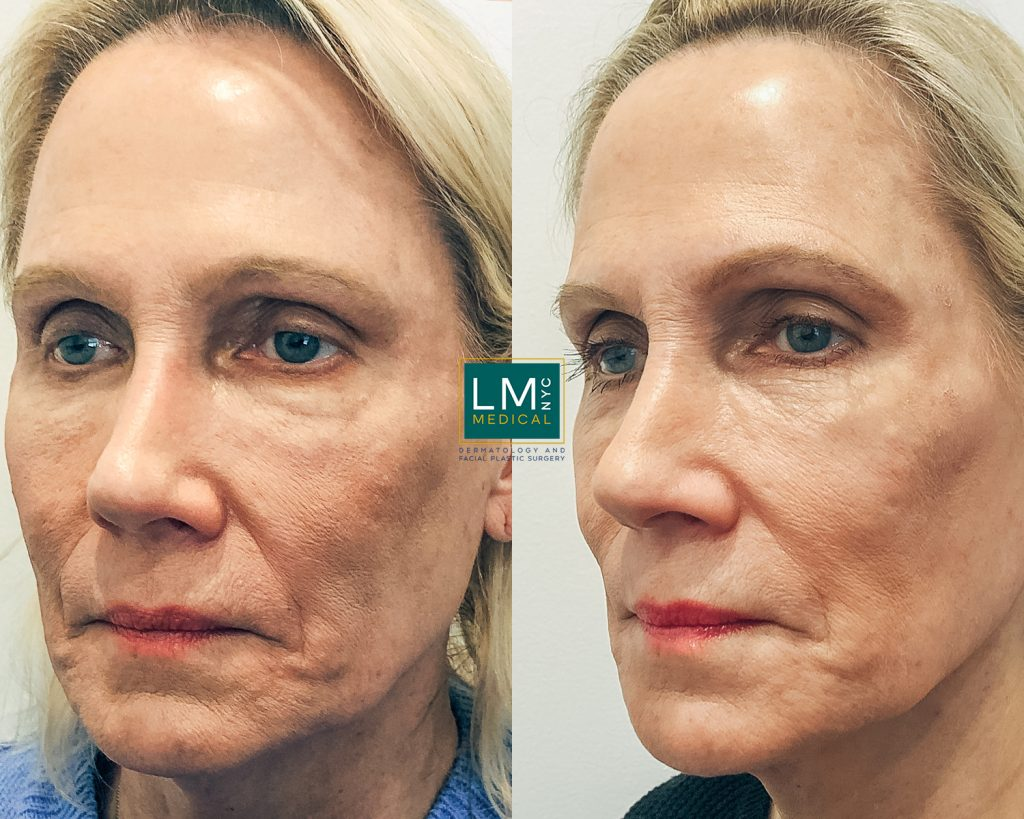 mature woman before and after global face filler treatment