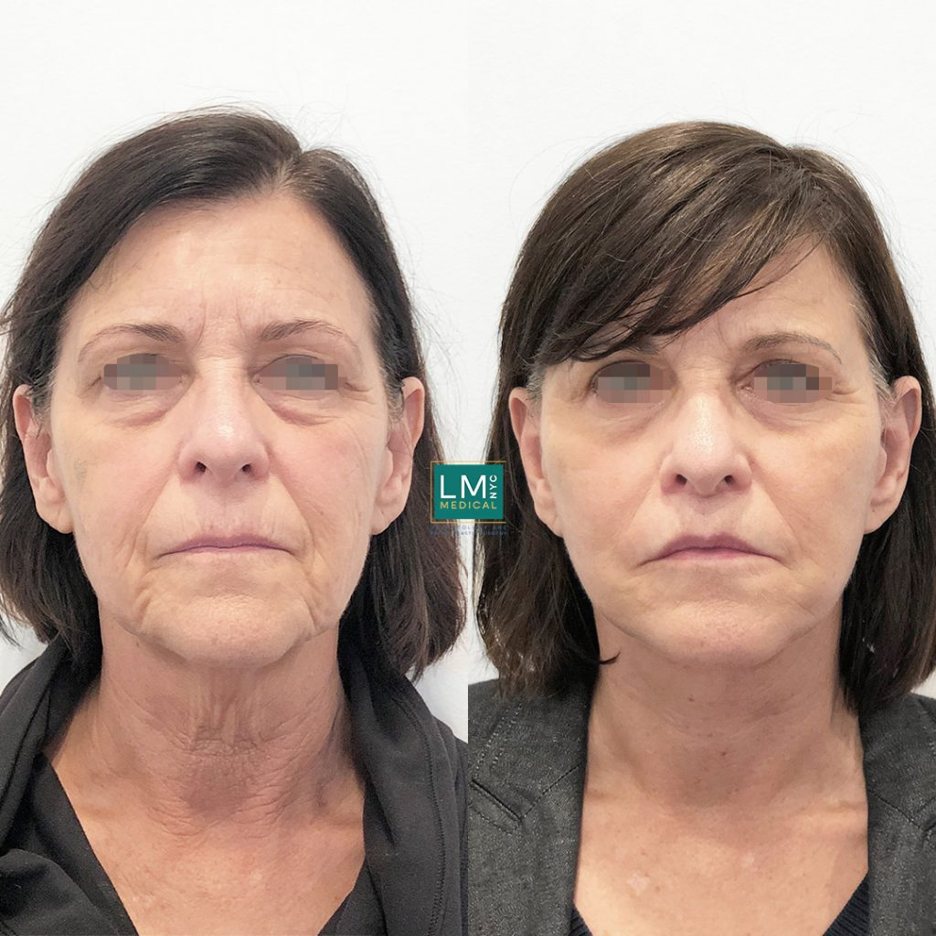 Female patient before and after facelift